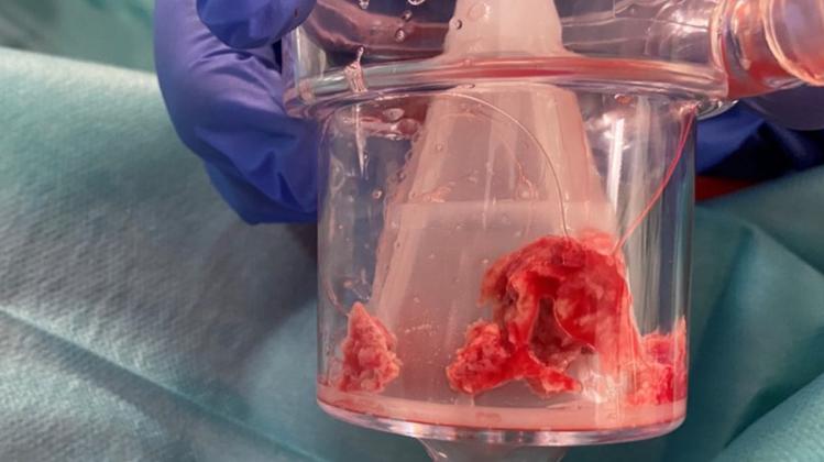 Das entfernte Blutgerinnsel im Filter. Mit rund 3 Zentimetern war es überdurchschnittlich gross. (USZ)