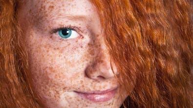 Rothaarige und Blonde haben das höchste Risiko, von zu viel UV-Strahlung Hautkrebs zu bekommen. (Bild: Fotolia)