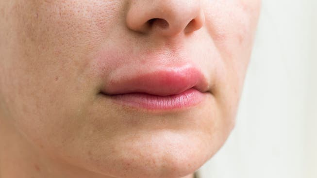 Geschwollene Lippen kann es auch bei einer allergischen Reaktion auf eine Impfung geben. Nicht nur bei Lebensmittelunverträglichkeiten.